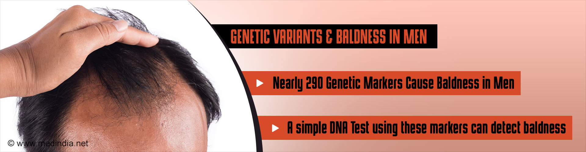 Genetic variants & baldness in men - Nearly 290 genetic markers cause baldness in men - A simple DNA ysing these markers can detect baldness
