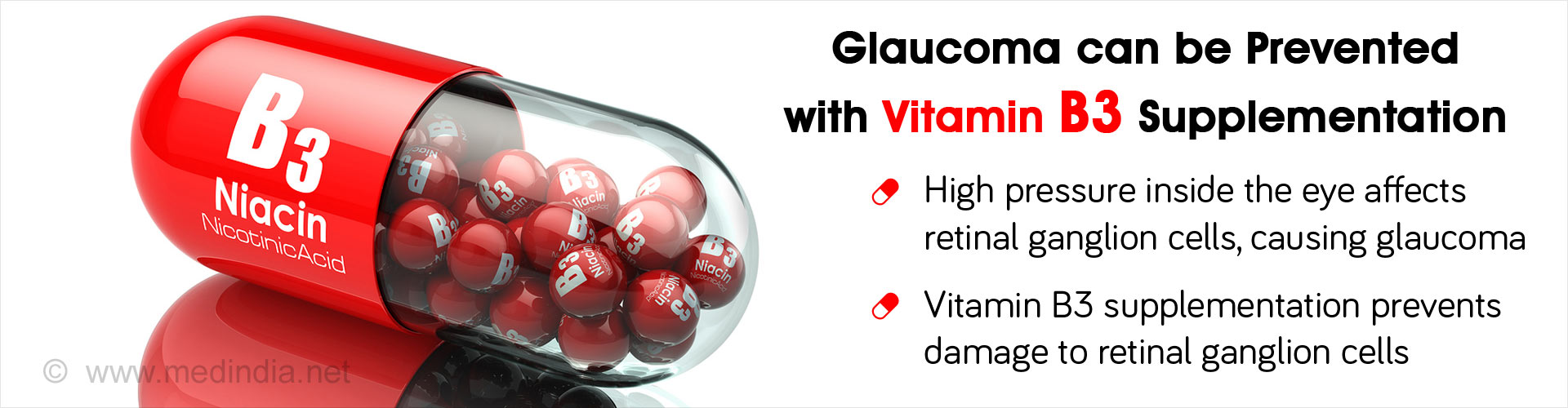 Supplementation of Vitamin B3 Prevents Glaucoma