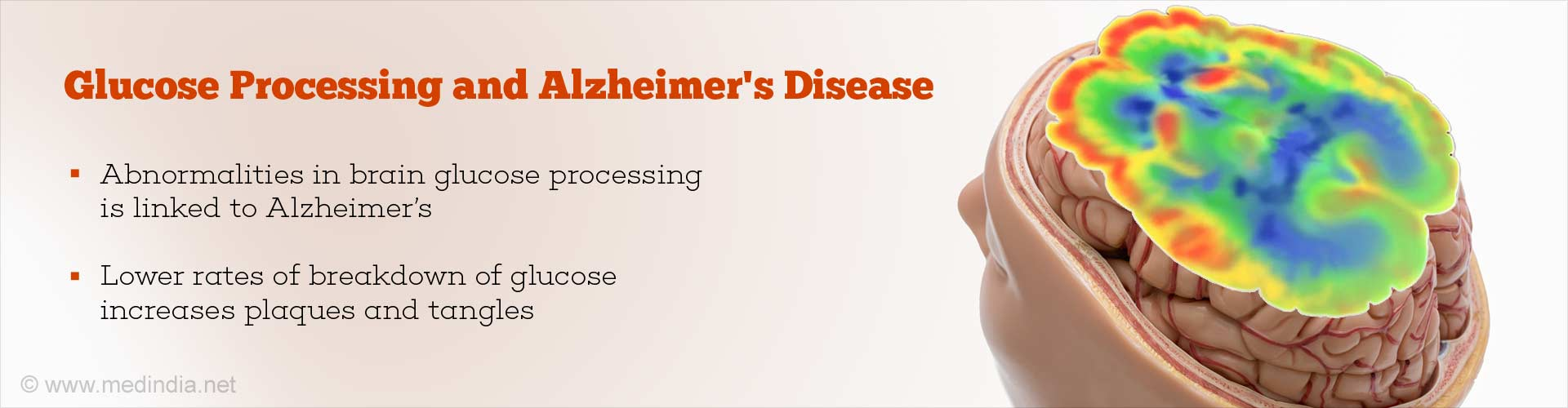 Increased Breakdown of Glucose in Brain Linked to Severity of Alzheimer's Disease