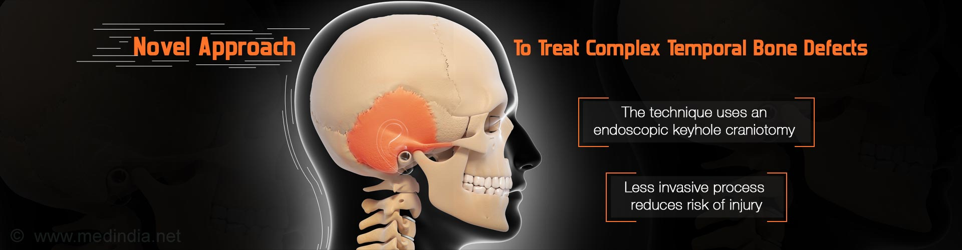 Groundbreaking Approach To Treat Complex Temporal Bone Defects
