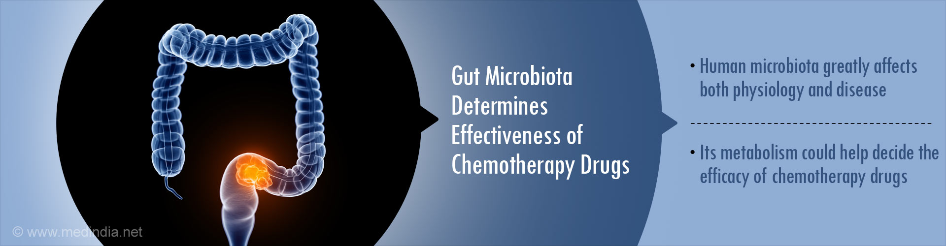 Gut microbiota determines effectiveness of chemotherapy drugs