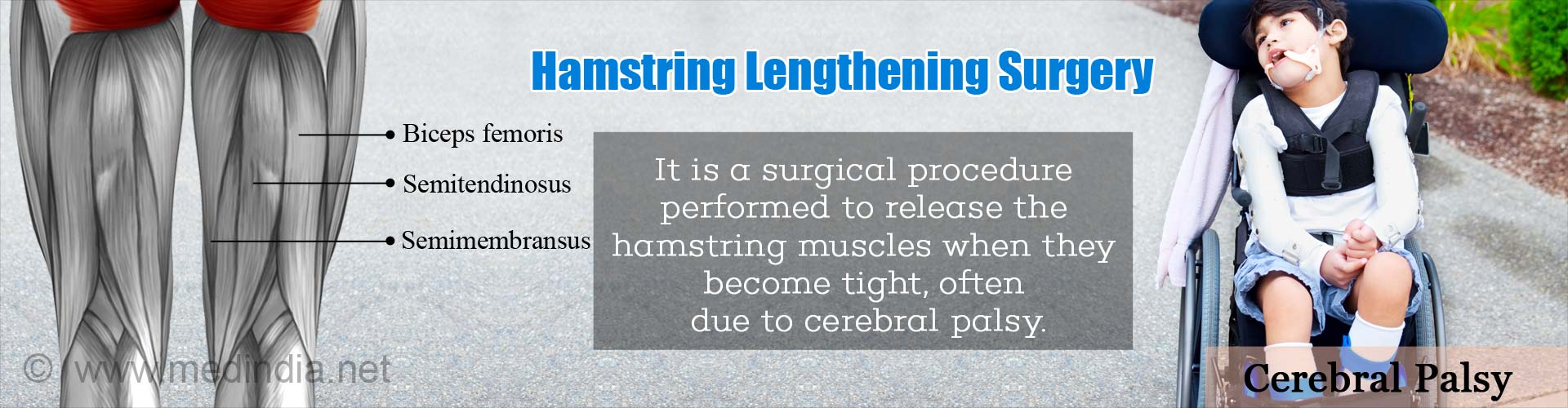 Hamstring Lengthening Surgery - It is a surgical procedure performed to release the hamstring muscles when they become tight, often due to cerebral palsy.