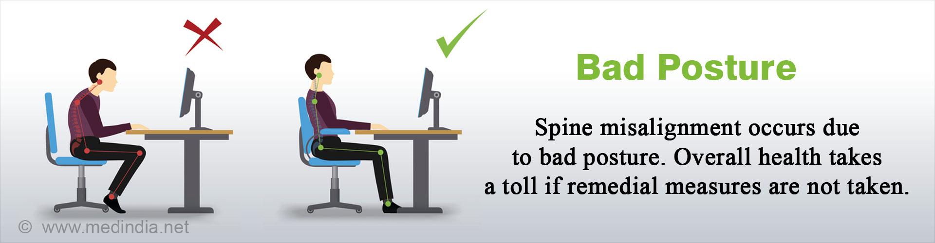 Top 7 Risks of Bad Posture