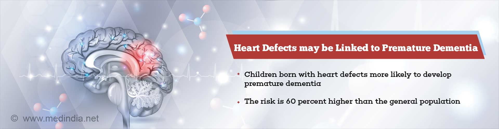 Childhood Heart Defects may Increase the Risk of Premature Dementia