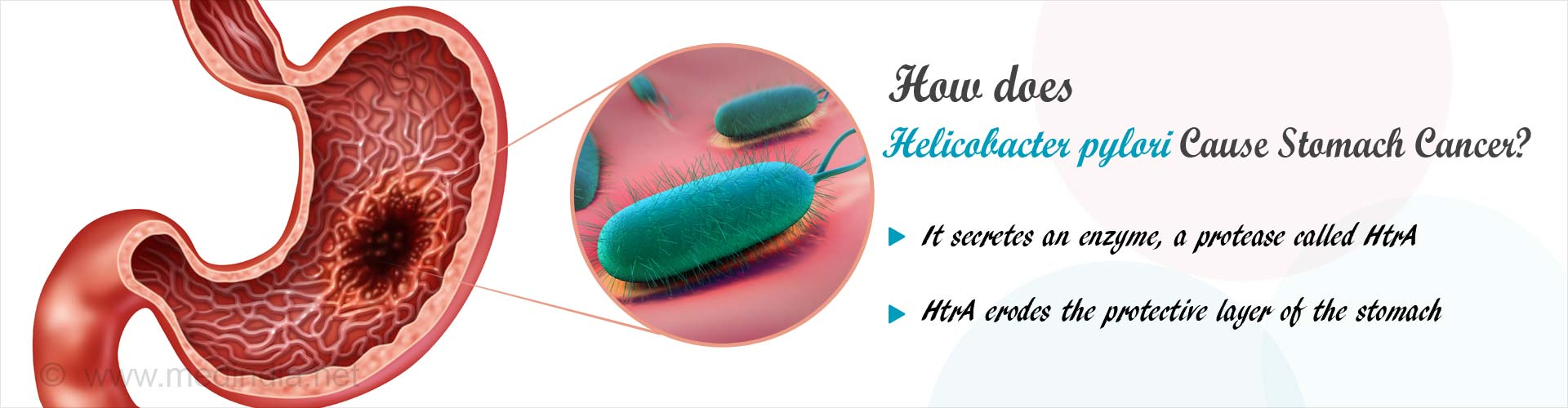 How does helicobacter pylori cause stomach cancer? - it secretes an enzyme, a protease called HtrA - HtrA erodes the protective layer of the stomach