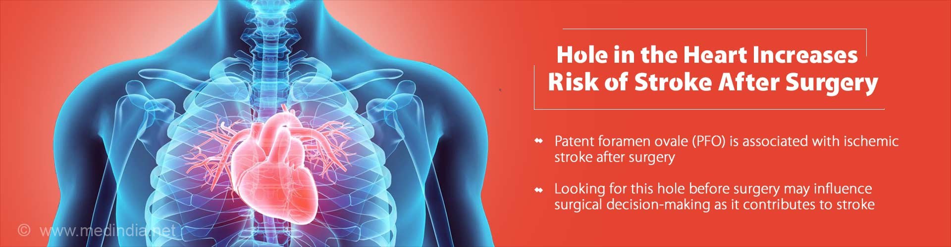 hole in the heart increases risk of stroke after surgery - patent foramen ovale (PFO) is associated with ischemic stroke after surgery - looking for this hole before surgery may influence surgical decision-making as it contributes to stroke
