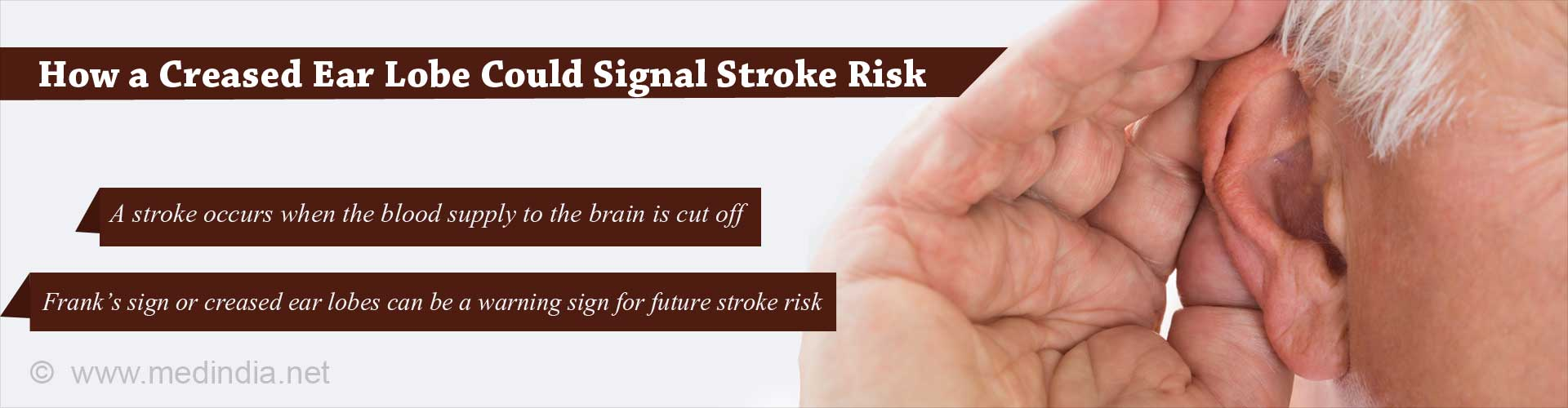 How a Creased Ear Lobe Could Signal Stroke Risk