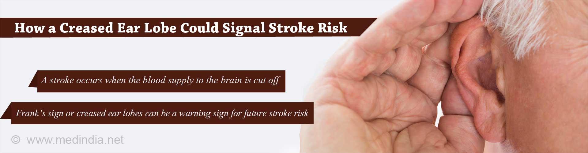 Can a Creased Ear Lobe Predict the Risk of Stroke