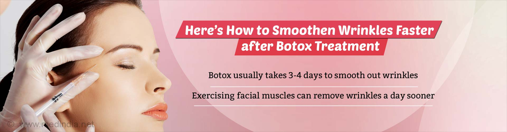 Here's how to smoothen wrinkles faster after Botox treatment. Botox usually takes 3-4 days to smooth out wrinkles. exercising facial muscles can remove wrinkles in just a day.