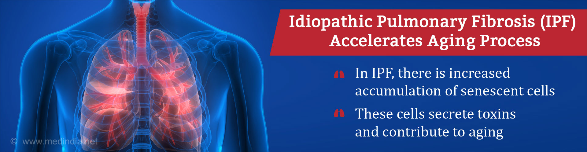Idiopathic pulmonary fibrosis (IPF) accelerates aging process - In IPF, there is increased accumulation of senescent cells - These cells screte toxins and contribute to aging