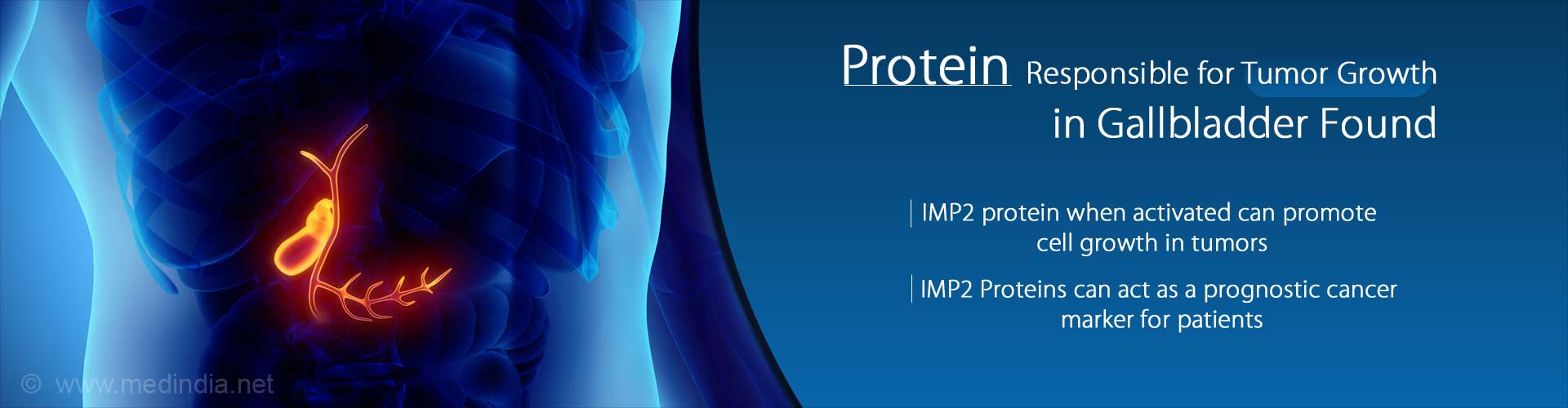 IMP2 Protein Might be Responsible for Gallbladder Tumor Growth