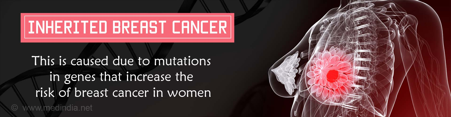 Inherited Breast Cancer - This is caused due to mutations in genes that increase the risk of breast cancer in women