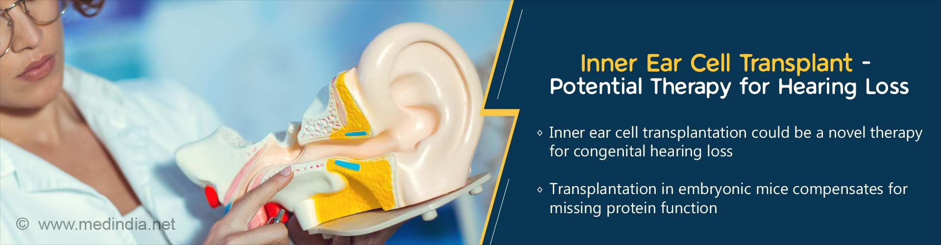 Inner Ear Cell Transplant - Potential Therapy for Hearing Loss