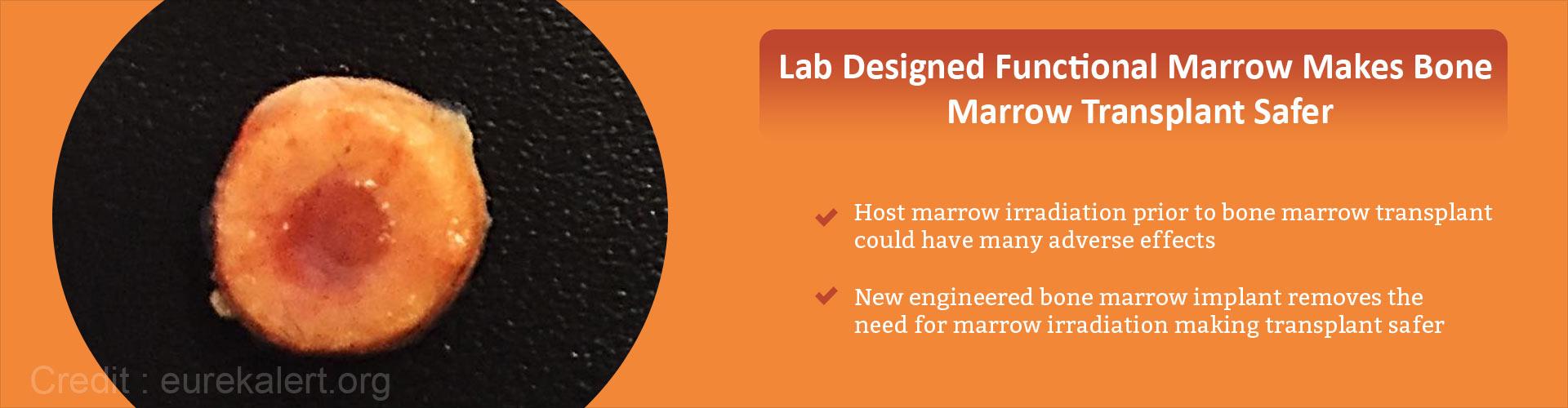 Lab designed functional marrow makes bone marrow transplant safer - Host marrow irradiation prior to bone marrow transplant could have many adverse effects - New engineered bone marrow implant removes the need for marrow irradiation making transplant safer