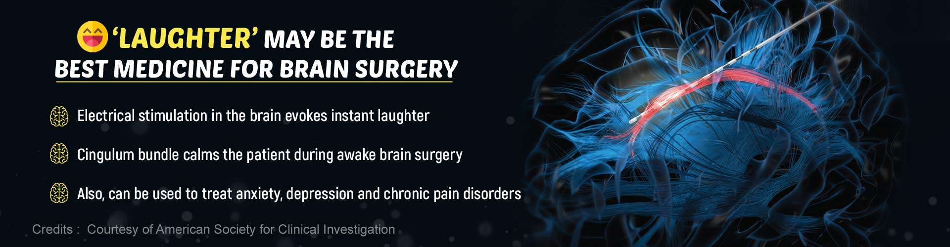 Laughter Helps Keep Patients Calm During Brain Surgery