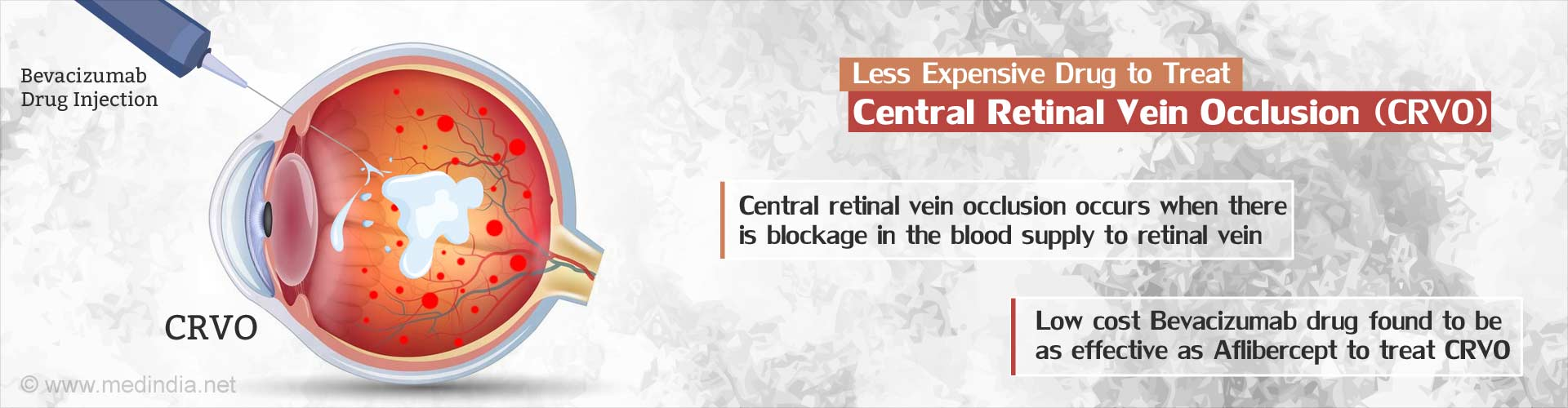 Less expensive drug to treat central retinal vein occlusion (CRVO)