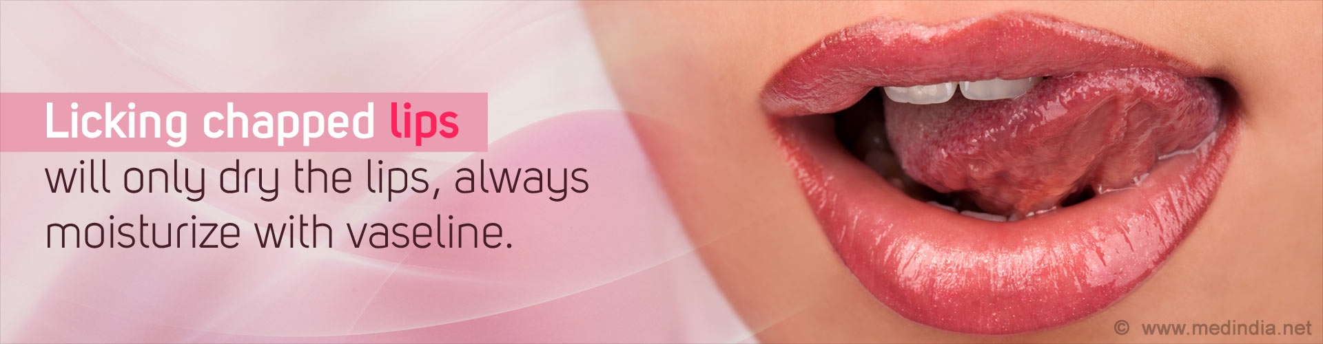 Licking chapped lips will only dry the lips, always moisturize with vaseline.