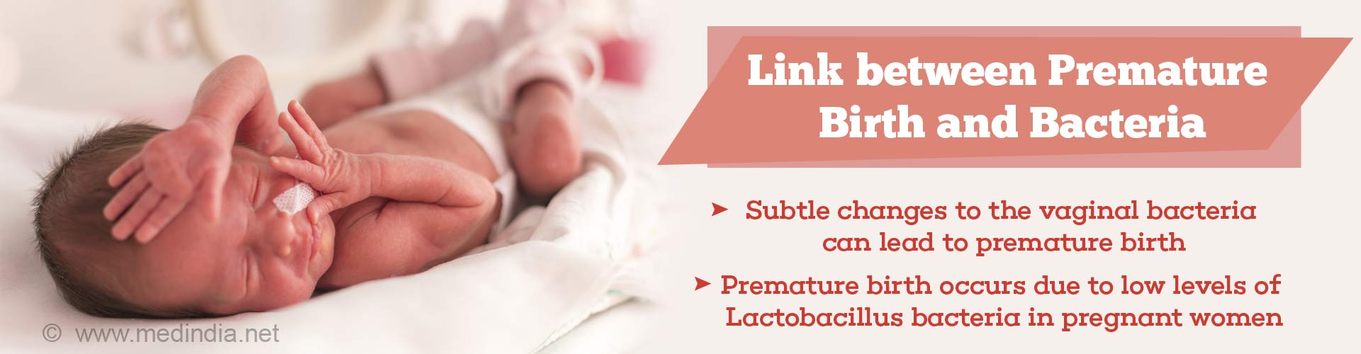link between premature birth and bacteria - subtle changes to the vaginal bacteria can lead to premature birth - premature birth occurs due to low levels of lactobacillus bacteria in pregnant women