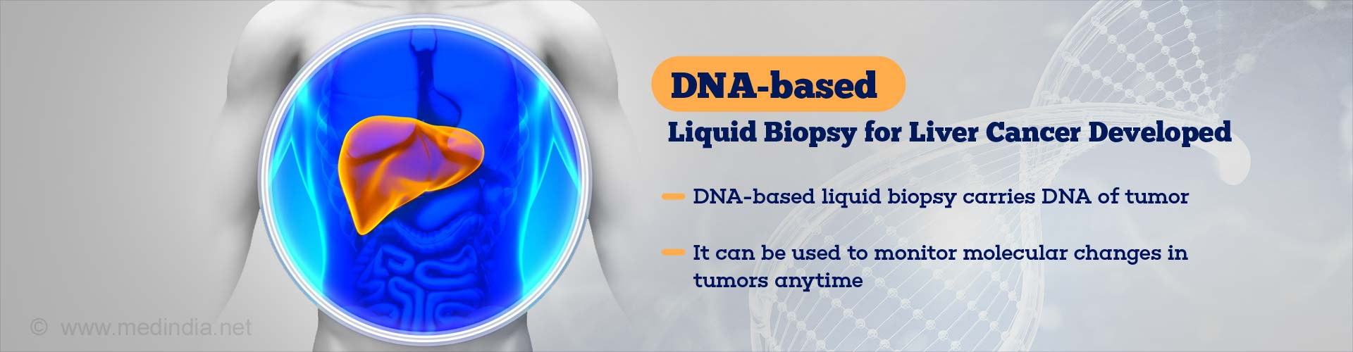 Liquid Biopsy With Tumor DNA - New Detection of Liver Cancer