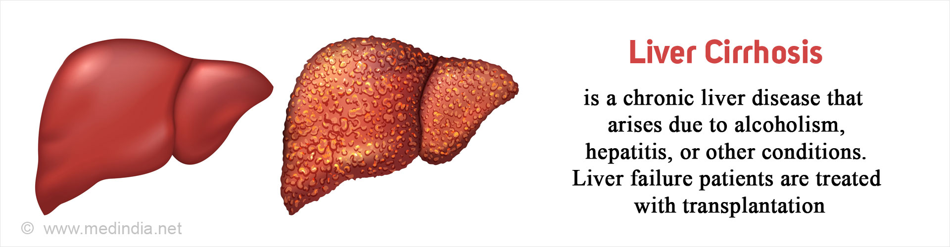 Liver Cirrhosis - Causes, Symptoms, Diagnosis, Treatment & Prevention