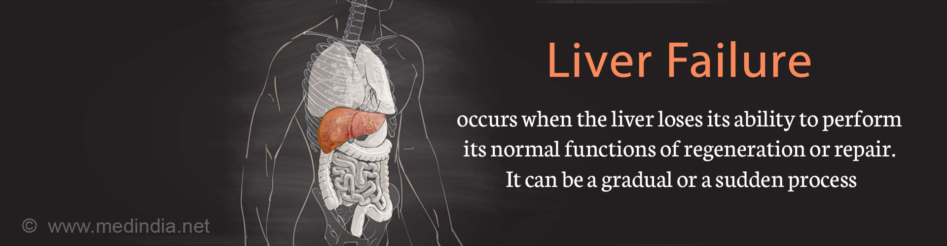 Liver Failure - Types, Causes, Symptoms, Complications, Diagnosis