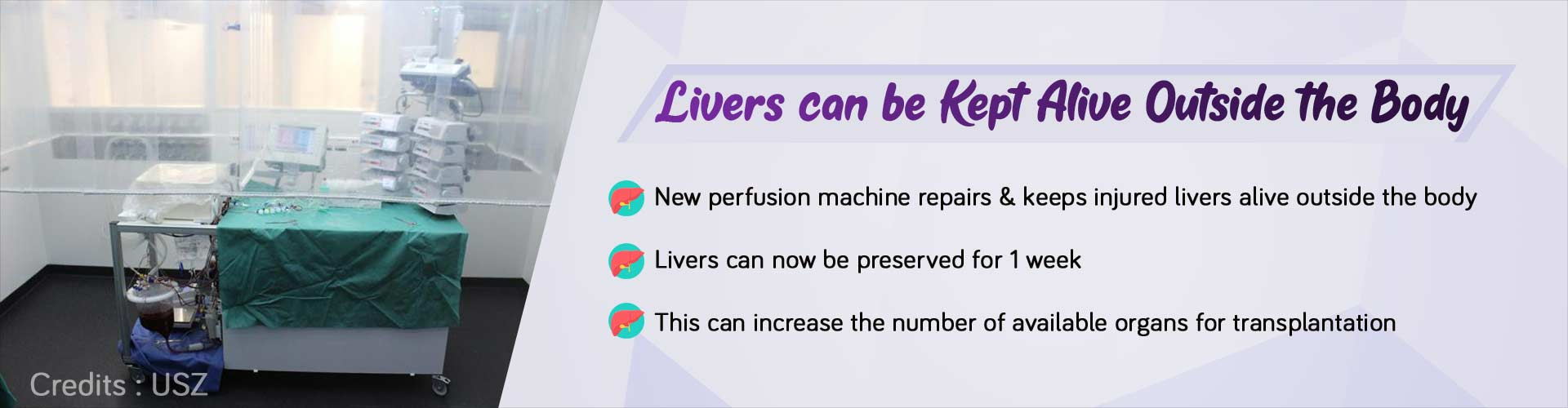 Perfusion Machine can Keep Human Livers Alive Outside the Body for 1 Week