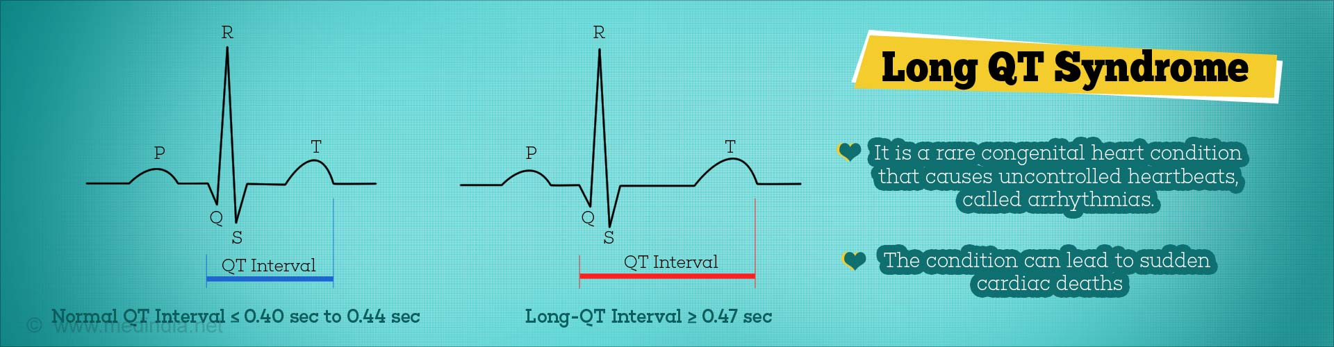Long QT Syndrome