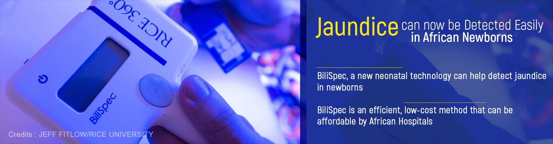 Jaundice can now be detected easily in African newborns