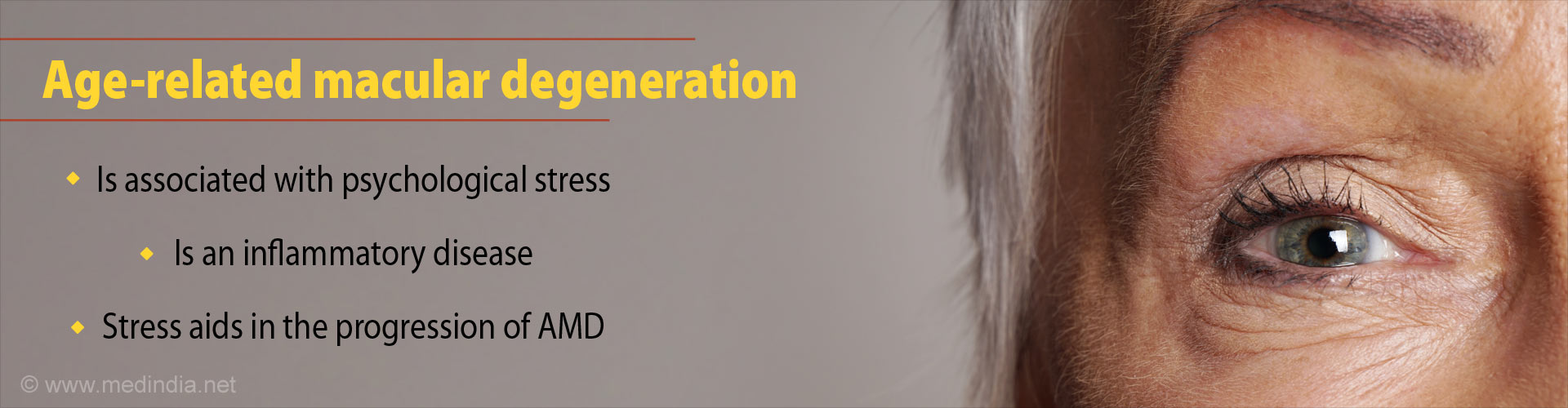 Age-related macular degeneration - Is associated with psychological stress - Is an inflammatory disease - Stress aids in the progression of AMD