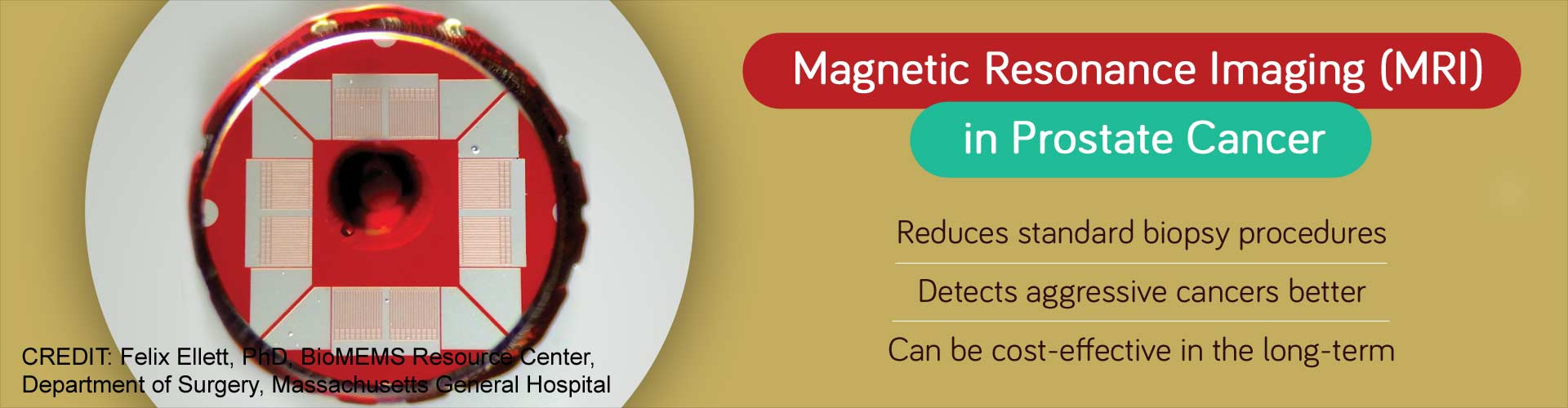 magnetic resonance imaging (MRI) in prostate cancer