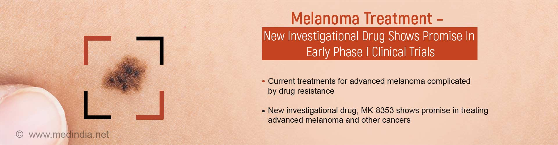 Melanoma Treatment - New Investigational Drug Shows Promise in Early Phase I Clinical Trials