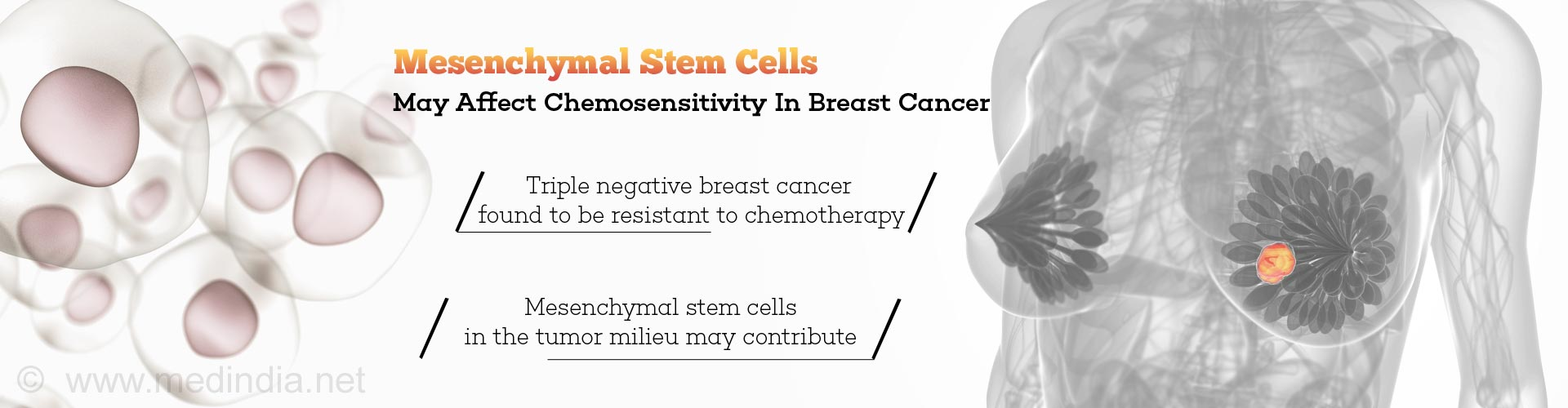 Chemo-resistance in Triple Negative Breast Cancer Linked To Mesenchymal Stem Cells In Tumor
