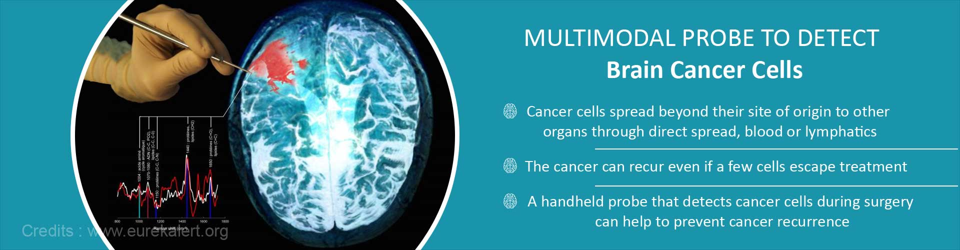 Multimodal probe to detect brain cancer cells - Cancer cells spread beyond their site of origin to other organs through direct spread, blood or lymphatics - The cancer can recur even if a few cells escape treatment - A handheld probe that detects cancer cells during surgery can help to prevent cancer recurrence