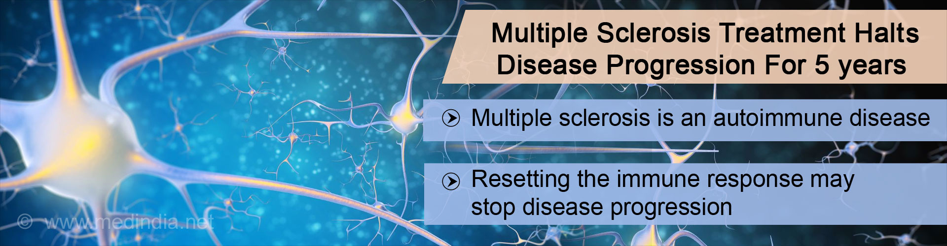 Multiple sclerosis treatment halt disease progression for 5 years - Multiple sclerosis is an autoimmune disease - Resetting the immune response may stop disease progression