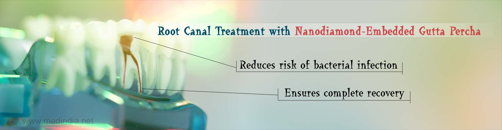 Nanodiamonds Reduce Infection After Root Canal Treatment