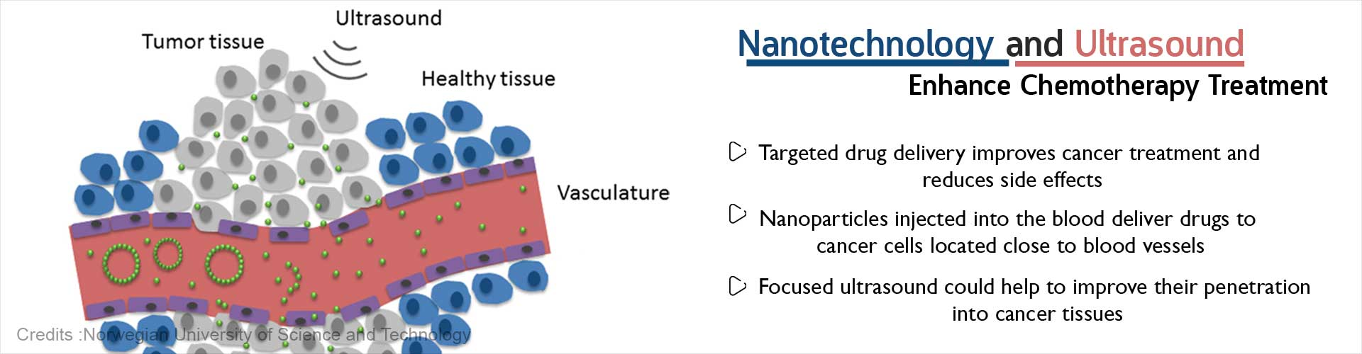 Nanotechnology and Ultrasound Enhance Chemotherapy Treatment