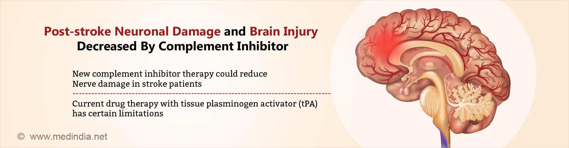 post-stroke neuronal damage and brain injury decreased by complement inhibitor