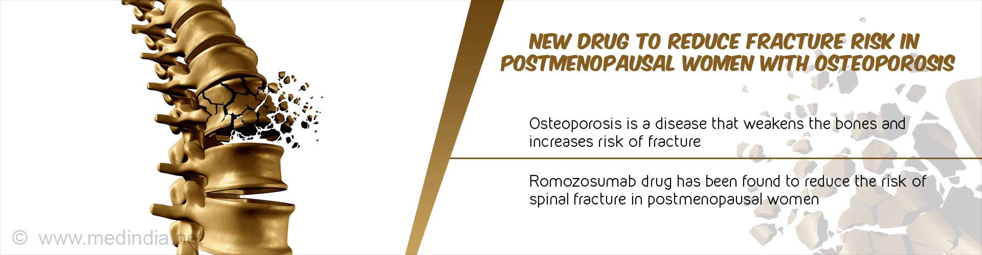 Postmenopausal Osteoporosis: Romosozumab Drug Could Reduce Spine Fracture Risk