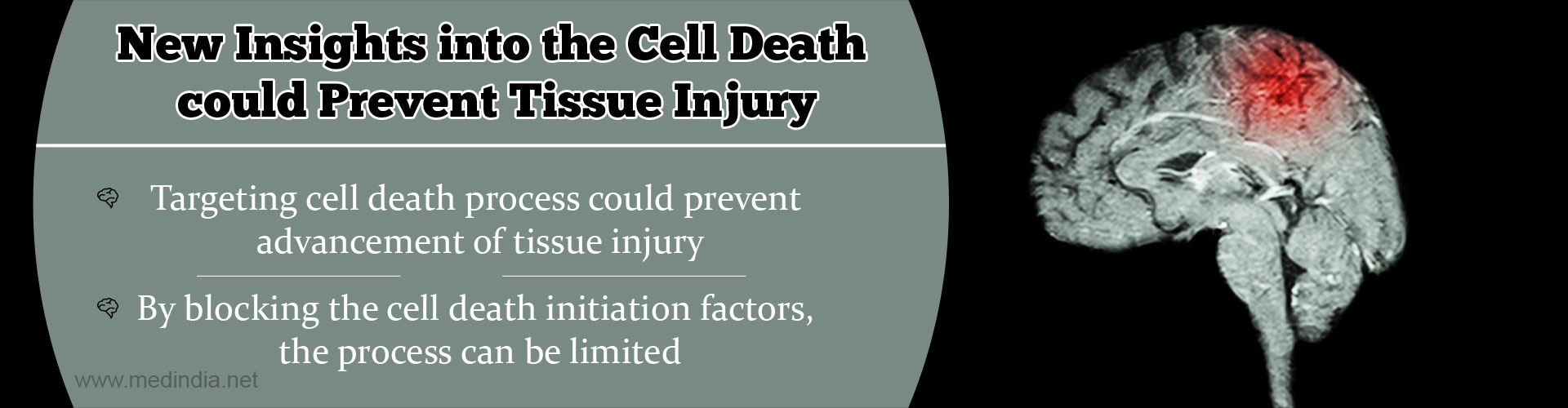 New Insights into the Cell Death could Prevent Tissue Injury - Targeting cell death process could prevent advancement of tissue injury - By blocking the cell death initiation factors, the process can be limited
