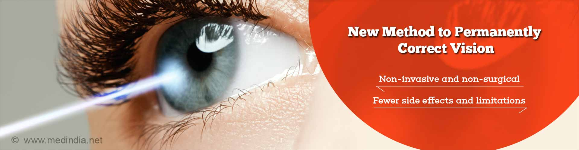 New method to permanently correct vision. Non-invasive and non-surgical. Fewer side effects and limitations.