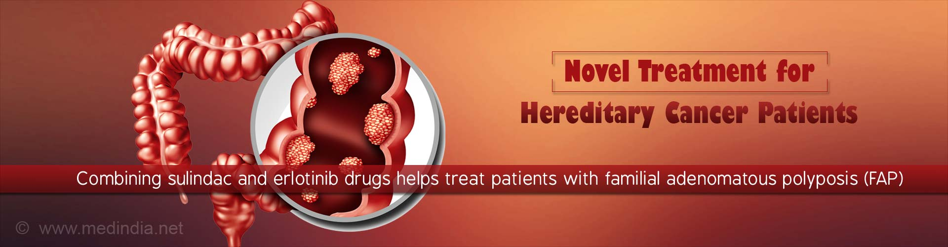 New Prevention Treatment for Hereditary Cancer Patients
