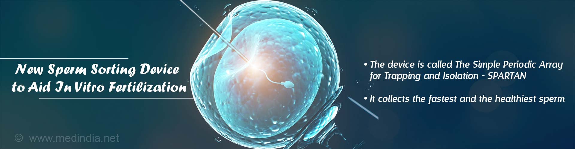 new-sperm-sorting-device-in-vitro-fertilization.jpg