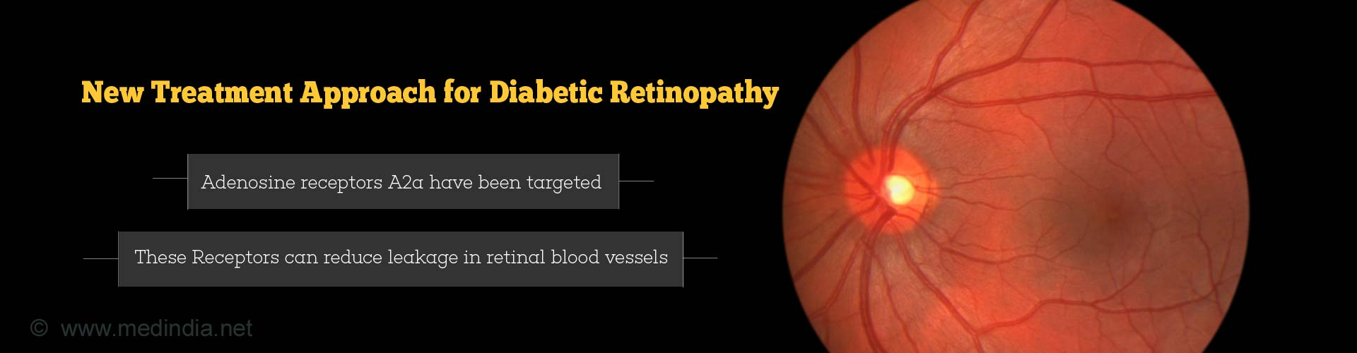new treatment approach for diabetic retinopathy