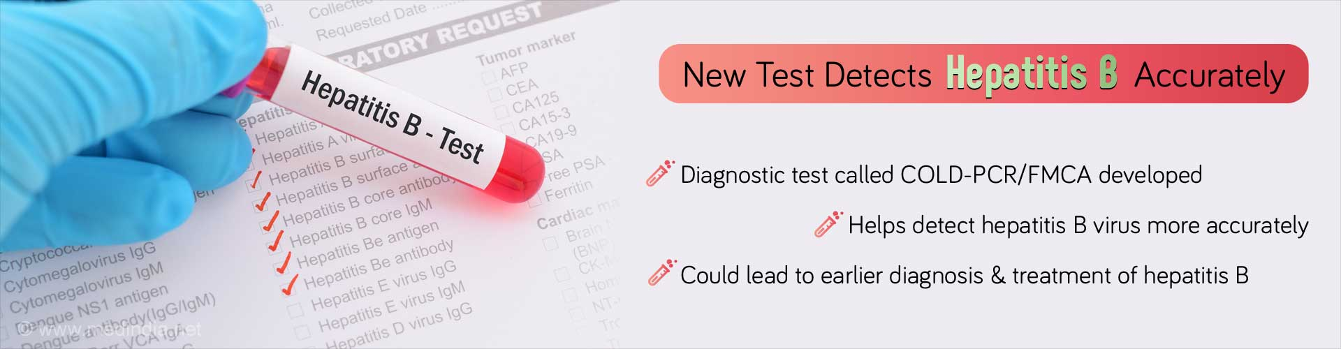 Hepatitis B can Now be Accurately Diagnosed with New Test: Here's How