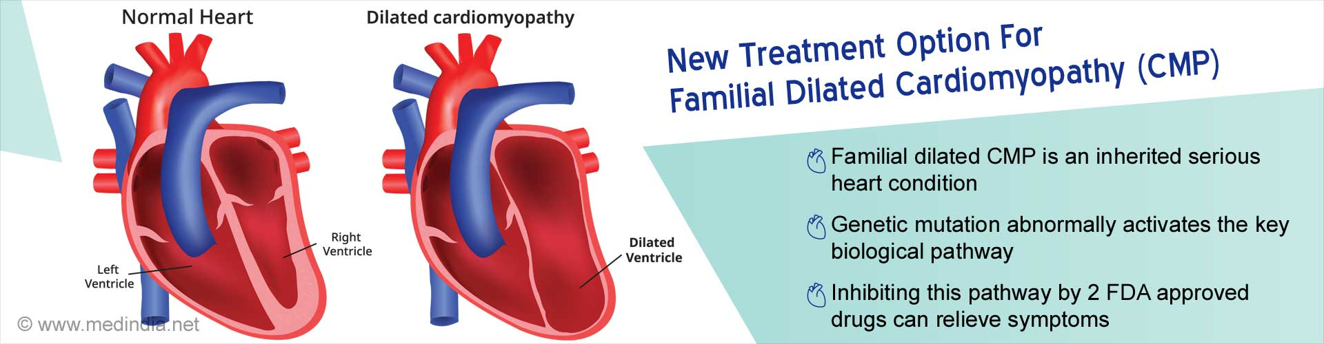 New treatment option for familial dilated cardiomyopathy (DCM). Familial DCM is an inherited serious heart condition. Genetic mutation abnormally activates the key biological pathway. Inhibiting this pathway by 2 FDA approved drugs can relieve symptoms.