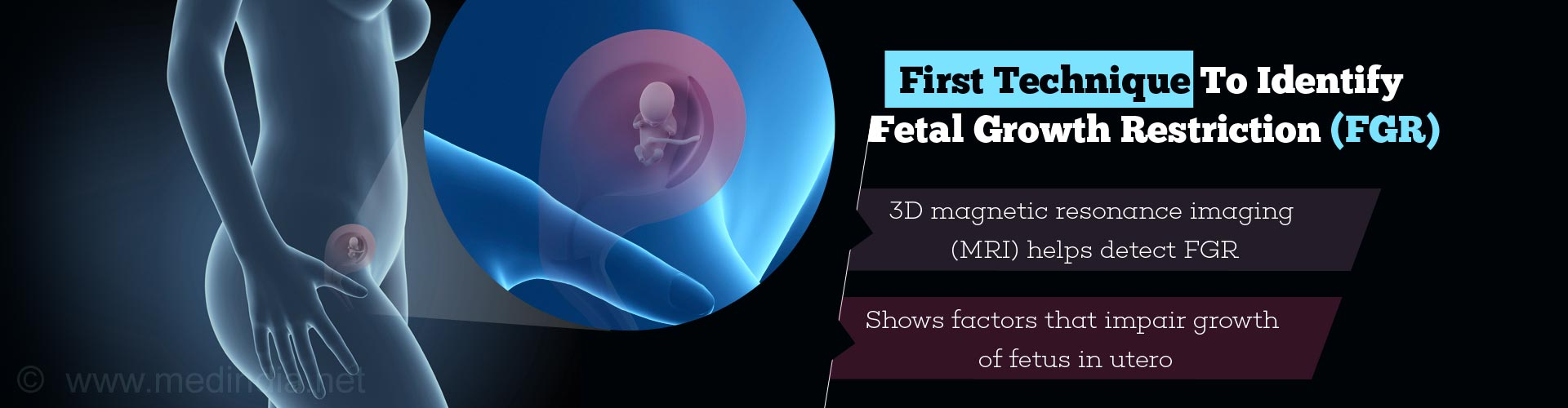 first technique to identify fetal growth restriction (fgr) - 3D magnetic resonance imaging (MRI) helps detect FGR - shows factors that impair growth of fetus in utero