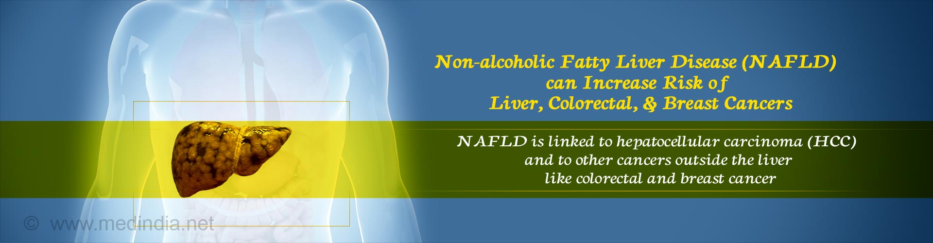 Nonalcoholic Fatty Liver Disease May Up Risk of Various Cancers