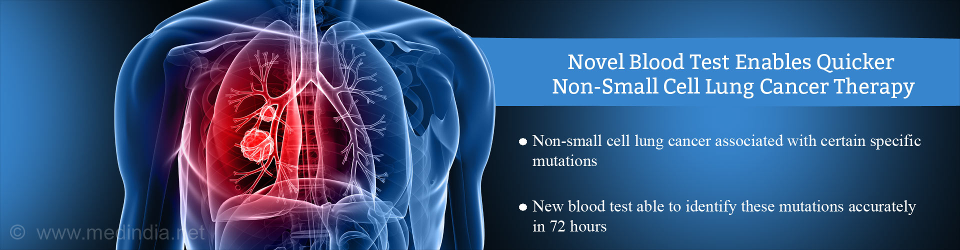 Novel Blood Test Allows Quicker, Precise Therapy of Non-Small Cell Lung Cancer