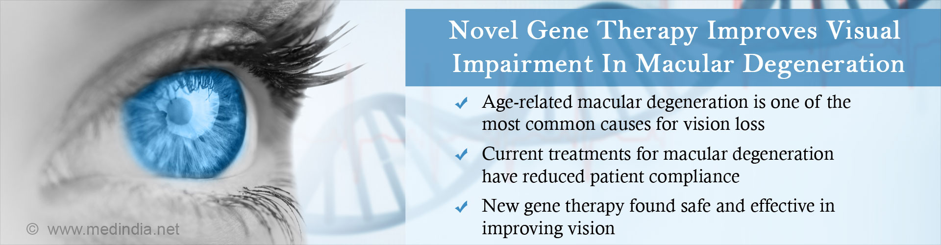 Novel gene therapy improves visual impairment in macular degeneration - age-related macular degeneration is one of the most common causes for vision loss - current treatments for macular degeneration have reduced patient compliance - New gene therapy found safe and effective