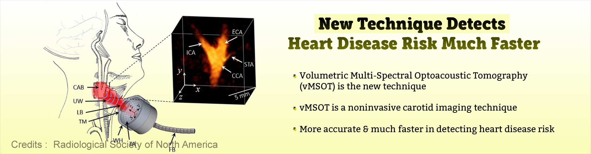 New technique detects heart disease risk much faster. Volumetric Multi-Spectral Optoacoustic Tomography (vMSOT) is the new technique. vMSOT is a noninvasive carotid imaging technique. More accurate and much faster in detecting heart disease risk.